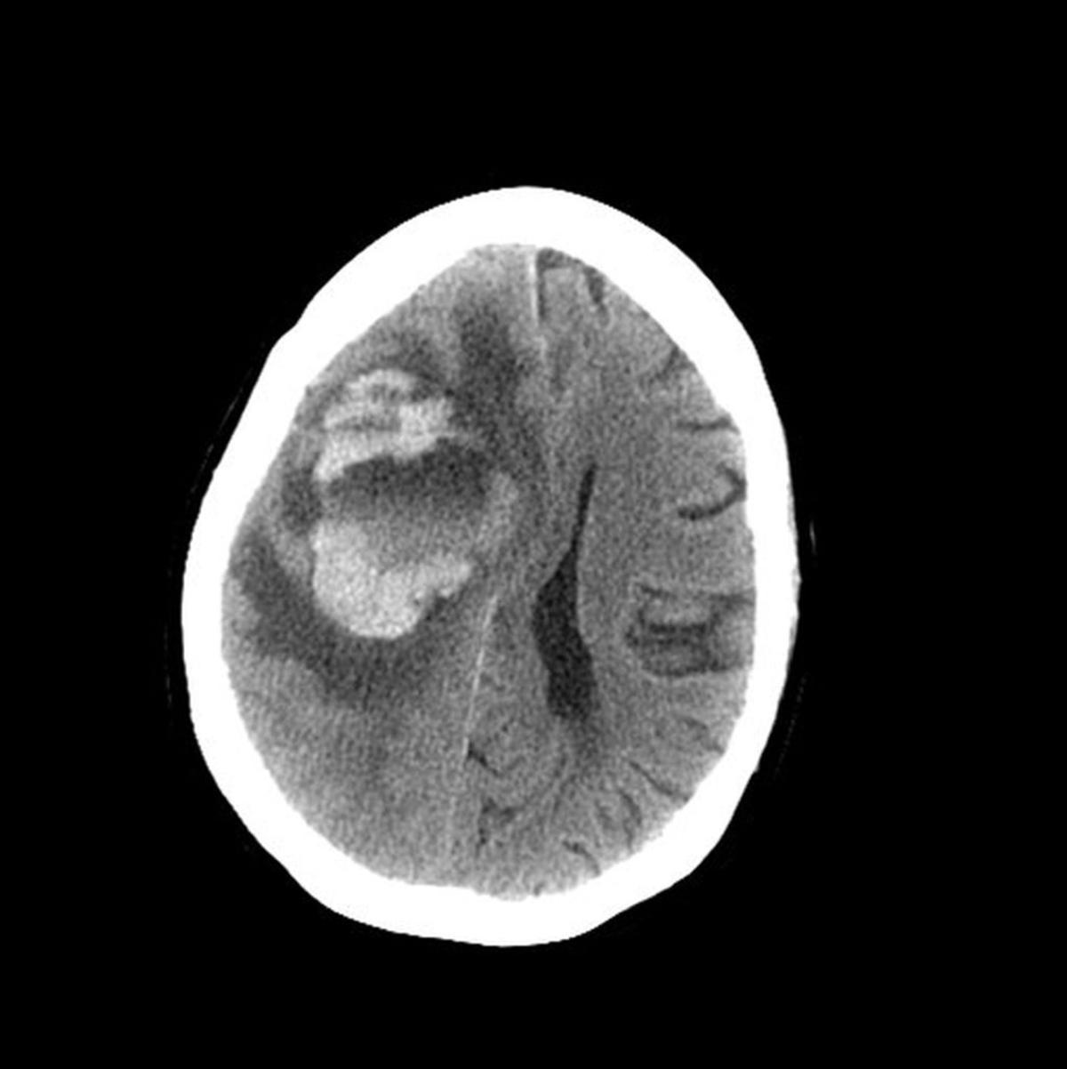 12042018_brain_112157-1560x1563.jpg