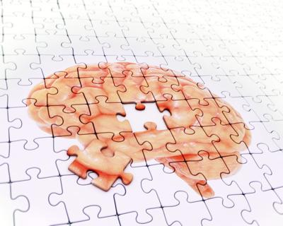 Take action now to keep your brain sharp