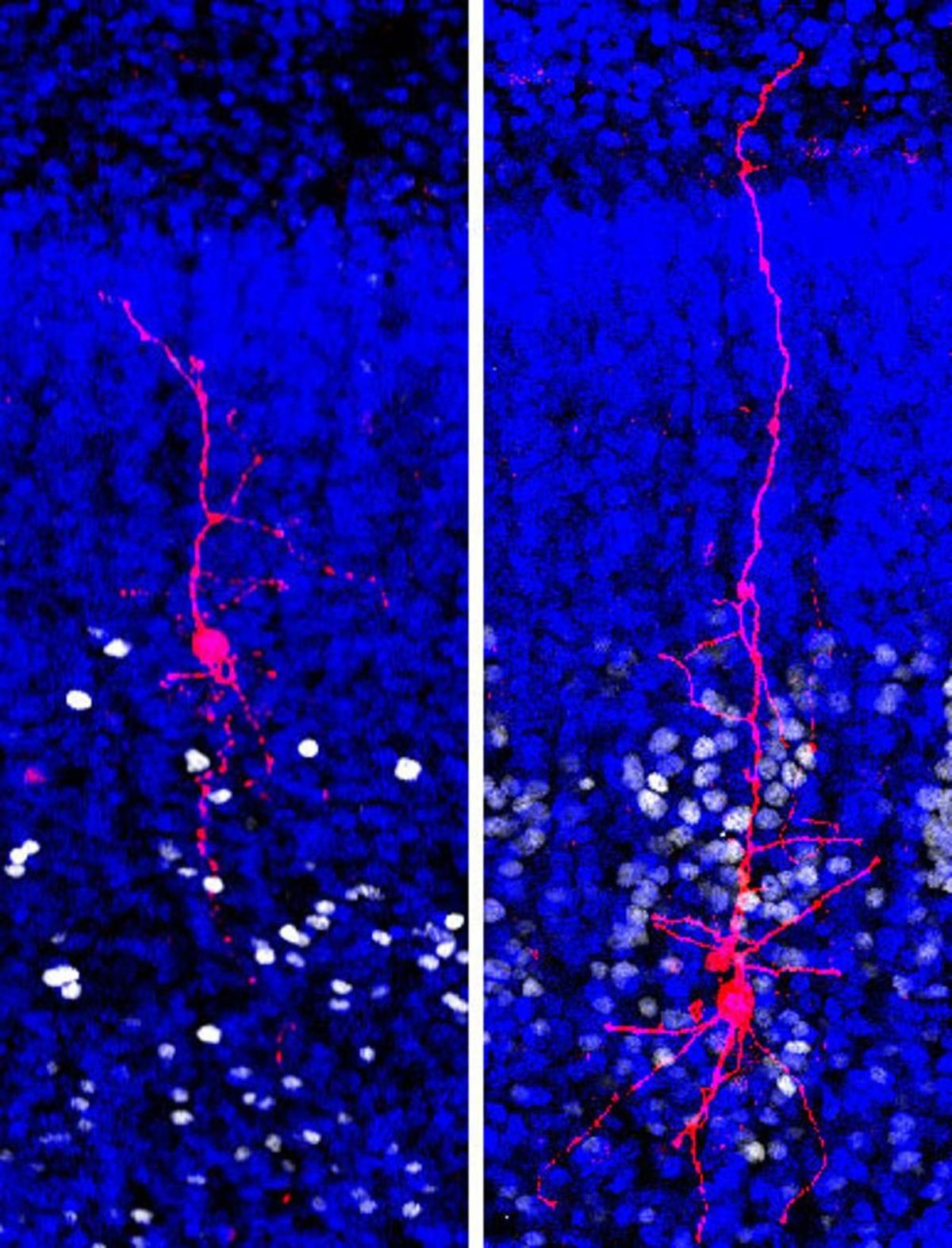 New autism research on single neurons suggests signaling problems in brain circuits