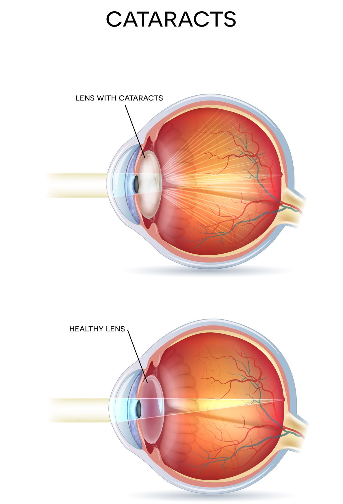 The miracle of modern cataract surgery