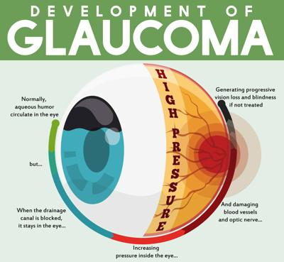 Regular screening for glaucoma is vital