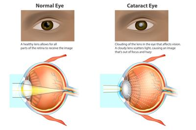 Three things patients should know about cataracts